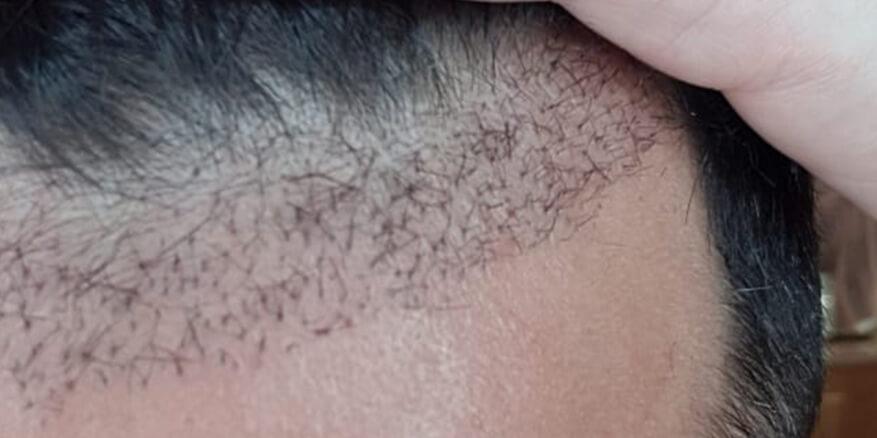 השתלת-שיער-אחרי-1