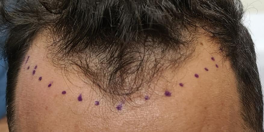 השתלת-שיער-לפני-1