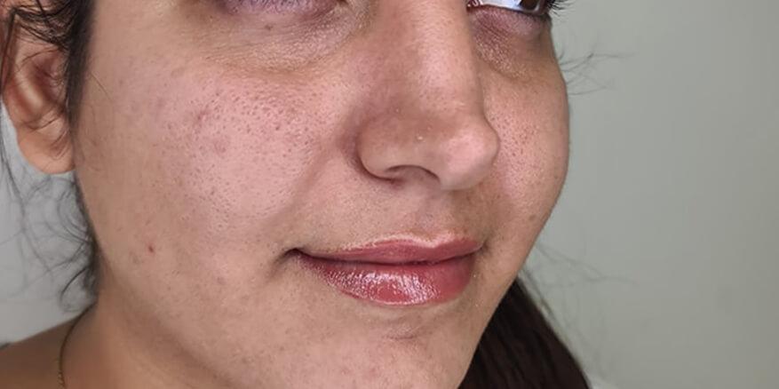 מילוי-שקעי-עיניים-לפני-1