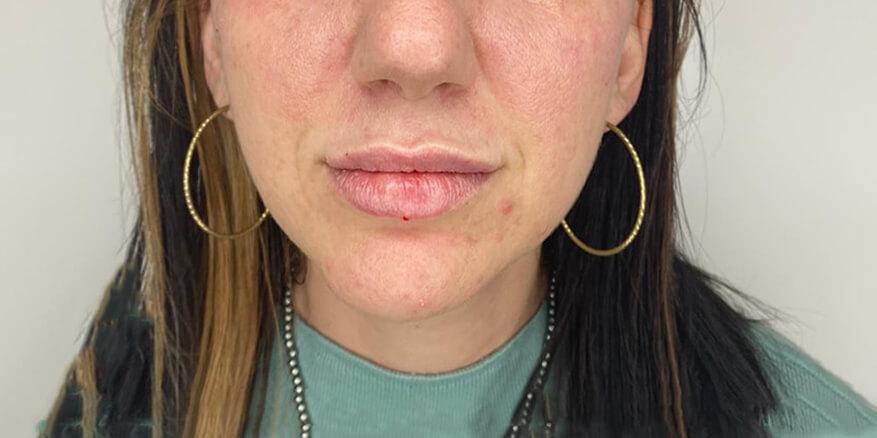 עיצוב-שפתיים-אחרי-1