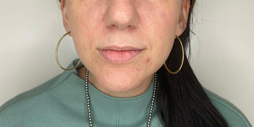 עיצוב-שפתיים-לפני-1